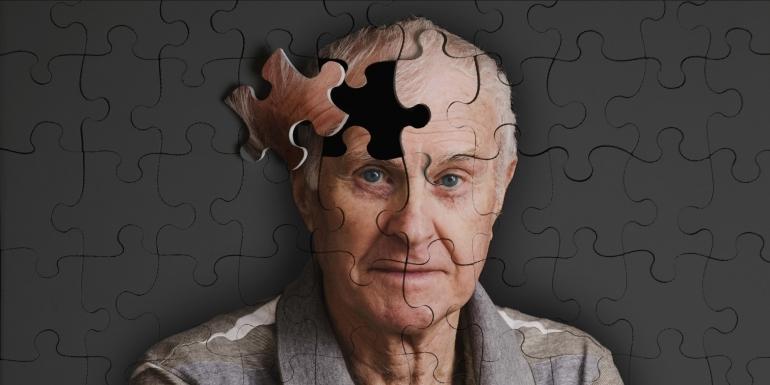 Alzheimer, dúvidas e mitos